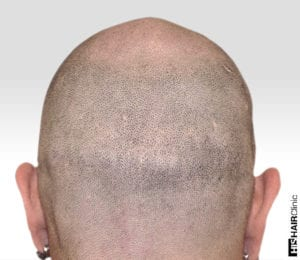 Can You Hide A Hair Transplant Scar Using SMP® 1