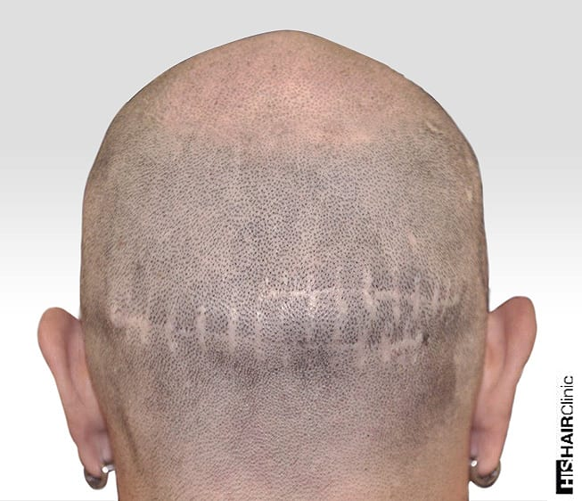 Can You Hide A Hair Transplant Scar Using SMP®