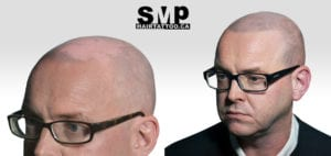 SMP for scarring alopecia