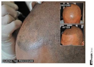 WHAT IS SMP® SCALP MICROPIGMENTATION