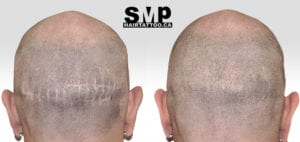 SMP treatment for hair transplant scars